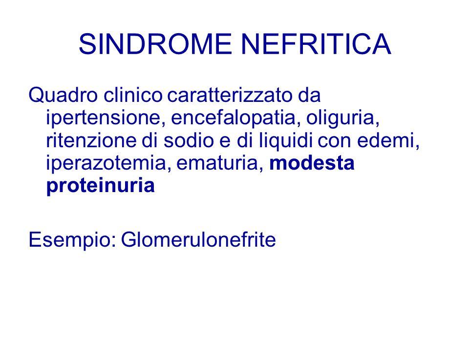 SINDROME NEFRITICA Quadro clinico caratterizzato da ipertensione, encefalopatia, oliguria, ritenzione di sodio e di liquidi con edemi, iperazotemia, e