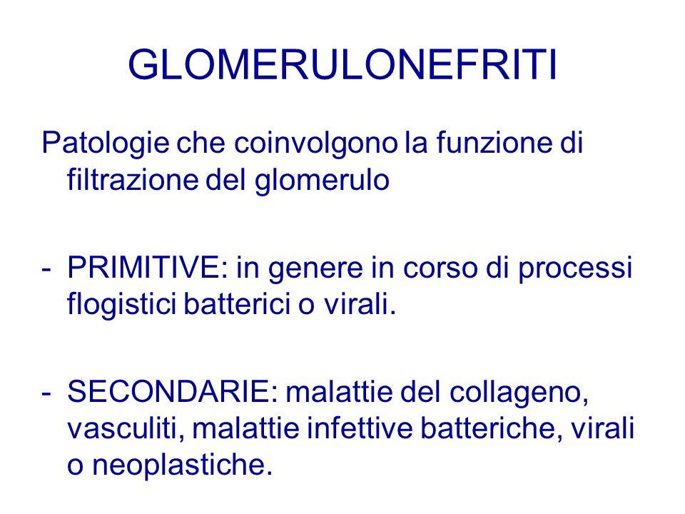 GLOMERULONEFRITI Patologie che coinvolgono la funzione di filtrazione del glomerulo - PRIMITIVE: in genere in corso di processi flogistici batterici o