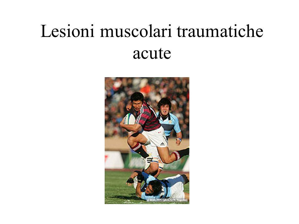 Lesioni muscolari traumatiche acute
