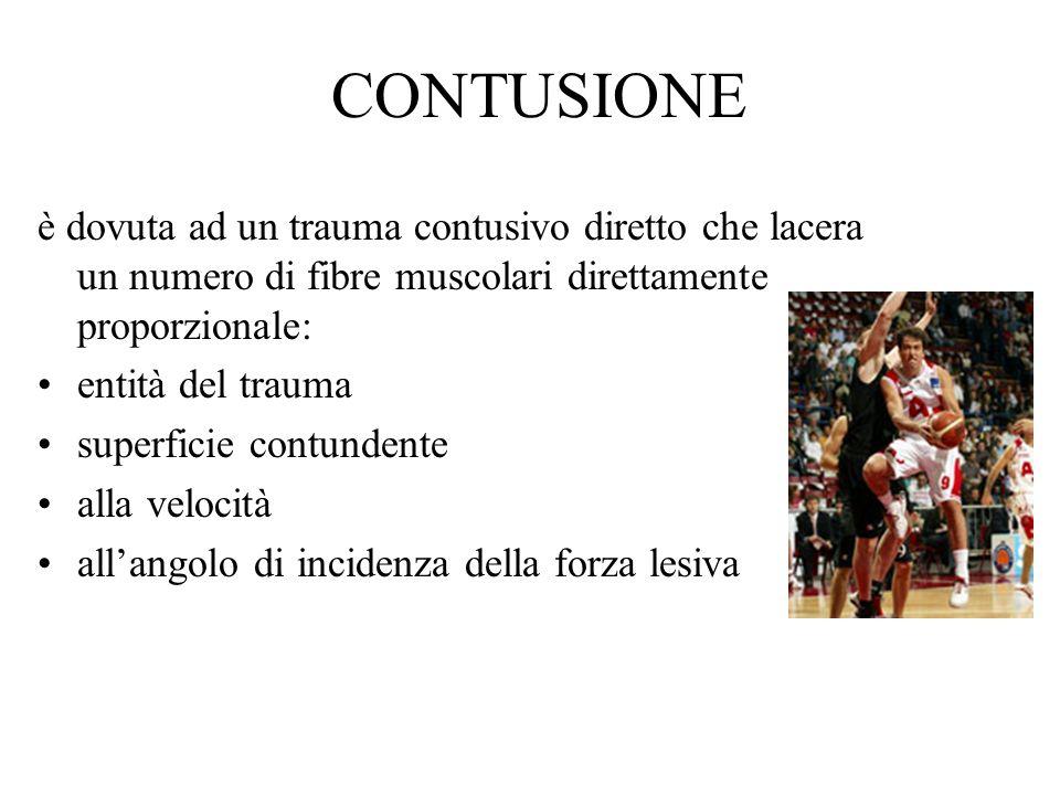 CONTUSIONE è dovuta ad un trauma contusivo diretto che lacera un numero di fibre muscolari direttamente proporzionale: entità del trauma superficie co