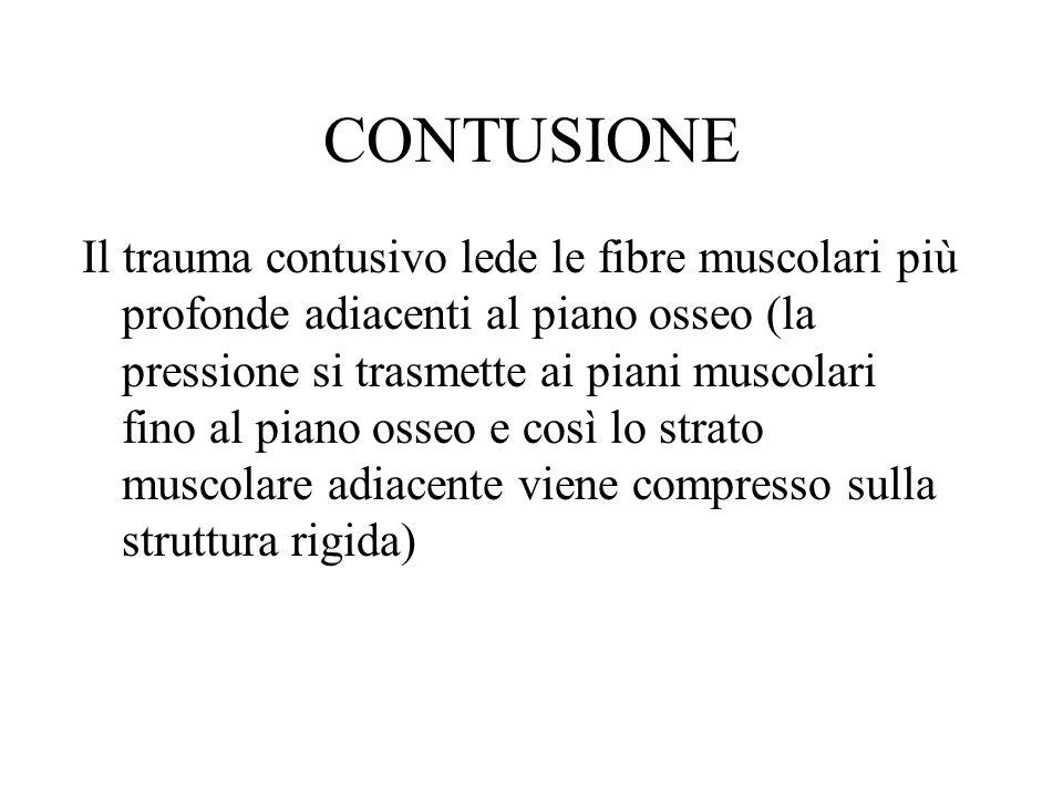 CONTUSIONE Il trauma contusivo lede le fibre muscolari più profonde adiacenti al piano osseo (la pressione si trasmette ai piani muscolari fino al pia