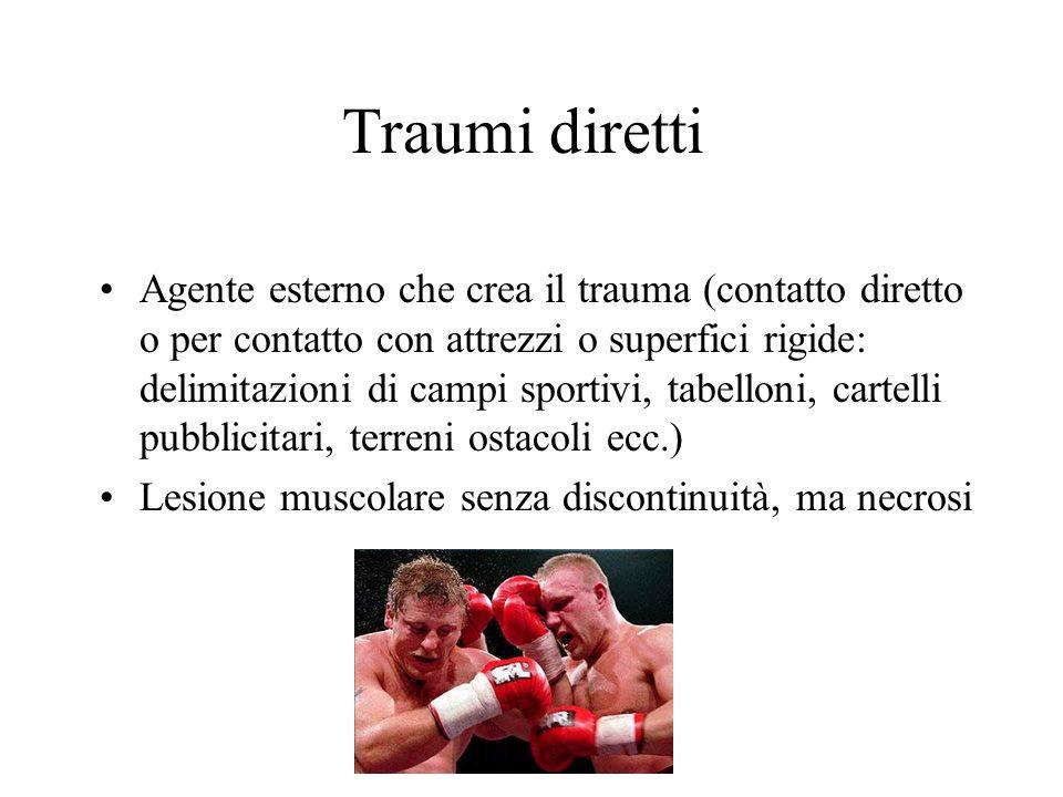 Traumi diretti Agente esterno che crea il trauma (contatto diretto o per contatto con attrezzi o superfici rigide: delimitazioni di campi sportivi, ta