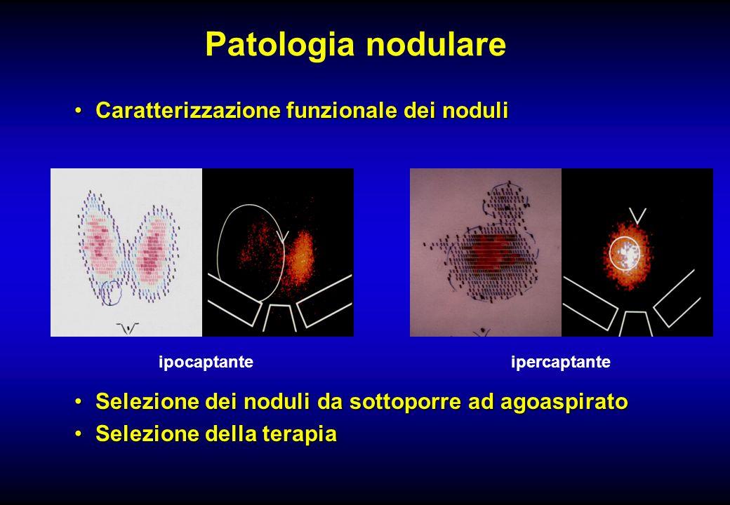 Patologia nodulare Caratterizzazione funzionale dei noduliCaratterizzazione funzionale dei noduli Selezione dei noduli da sottoporre ad agoaspiratoSel