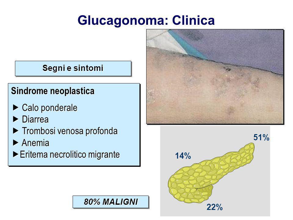 51% 14% 22% Segni e sintomi Distribuzione del tumore Diabete Mellito Sindrome endocrina multipla Eritema necrolitico migrante Sindrome neoplastica Dia