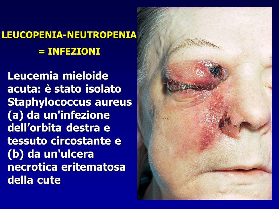 Leucemia mieloide acuta: è stato isolato Staphylococcus aureus (a) da un'infezione dellorbita destra e tessuto circostante e (b) da un'ulcera necrotic