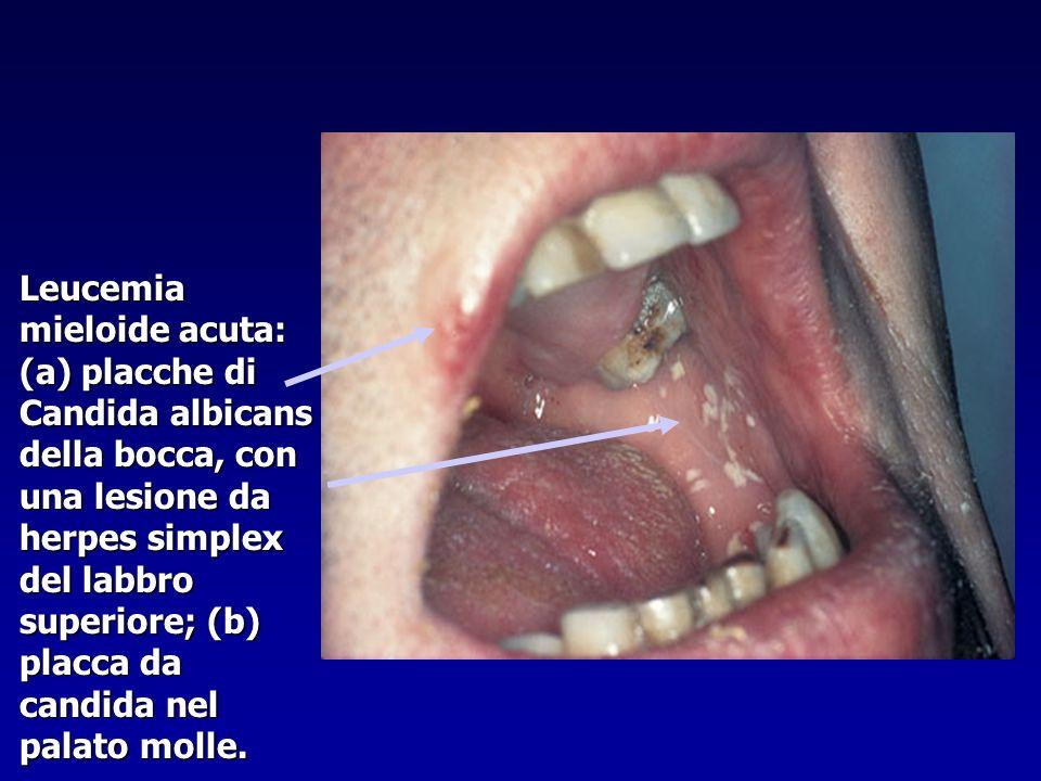 Leucemia mieloide acuta: (a) placche di Candida albicans della bocca, con una lesione da herpes simplex del labbro superiore; (b) placca da candida ne