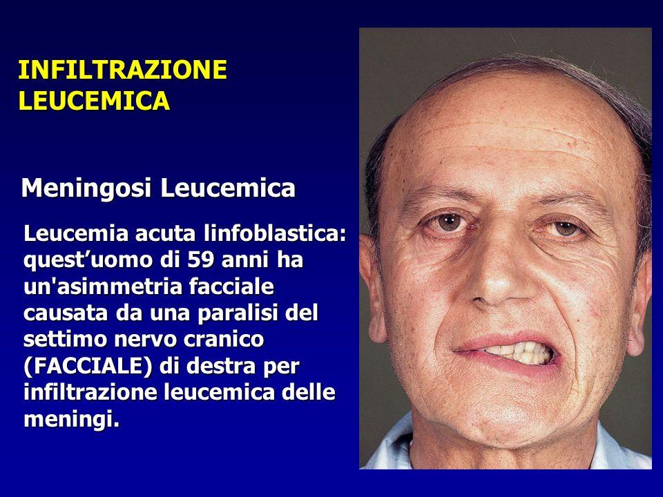 Leucemia acuta linfoblastica: questuomo di 59 anni ha un'asimmetria facciale causata da una paralisi del settimo nervo cranico (FACCIALE) di destra pe