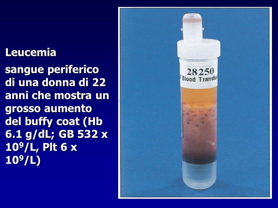 Leucemia sangue periferico di una donna di 22 anni che mostra un grosso aumento del buffy coat (Hb 6.1 g/dL; GB 532 x 10 9 /L, Plt 6 x 10 9 /L)