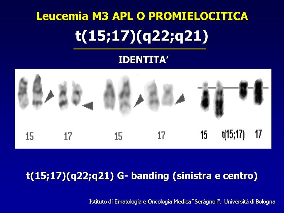 t(15;17)(q22;q21) t(15;17)(q22;q21) G- banding (sinistra e centro) IDENTITA Istituto di Ematologia e Oncologia Medica Seràgnoli, Università di Bologna