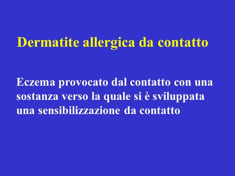 Dermatite allergica da contatto Eczema provocato dal contatto con una sostanza verso la quale si è sviluppata una sensibilizzazione da contatto