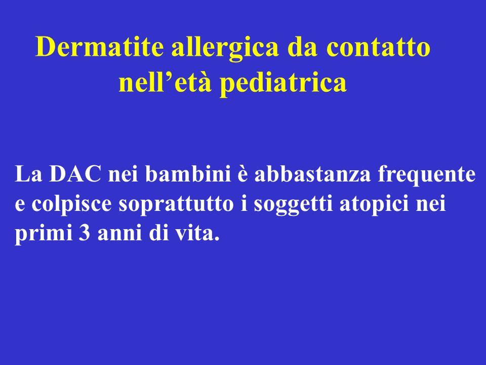 Dermatite allergica da contatto nelletà pediatrica La DAC nei bambini è abbastanza frequente e colpisce soprattutto i soggetti atopici nei primi 3 ann