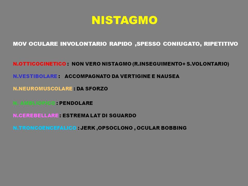 NISTAGMO MOV OCULARE INVOLONTARIO RAPIDO,SPESSO CONIUGATO, RIPETITIVO N.OTTICOCINETICO : NON VERO NISTAGMO (R.INSEGUIMENTO+ S.VOLONTARIO) N.VESTIBOLAR