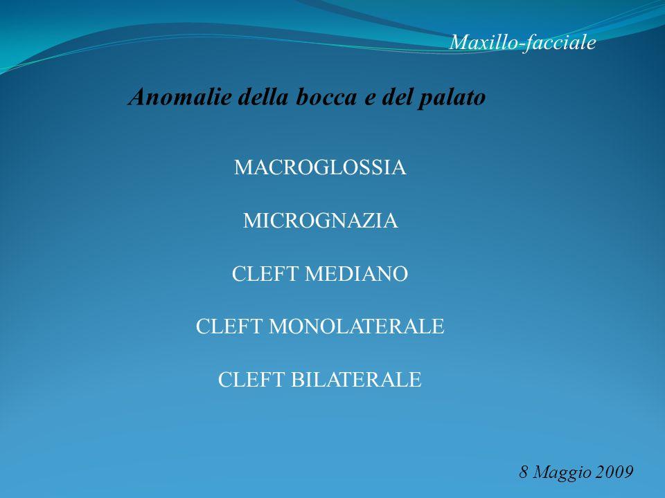 Maxillo-facciale 8 Maggio 2009 Anomalie della bocca e del palato MACROGLOSSIA MICROGNAZIA CLEFT MEDIANO CLEFT MONOLATERALE CLEFT BILATERALE