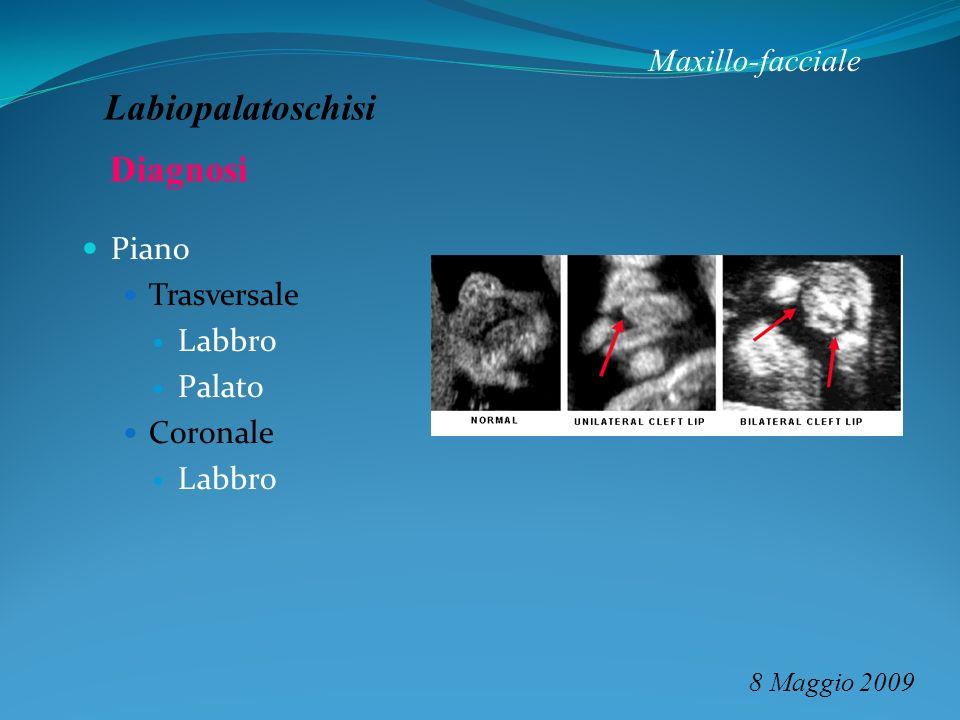 Maxillo-facciale 8 Maggio 2009 Labiopalatoschisi Piano Trasversale Labbro Palato Coronale Labbro Diagnosi