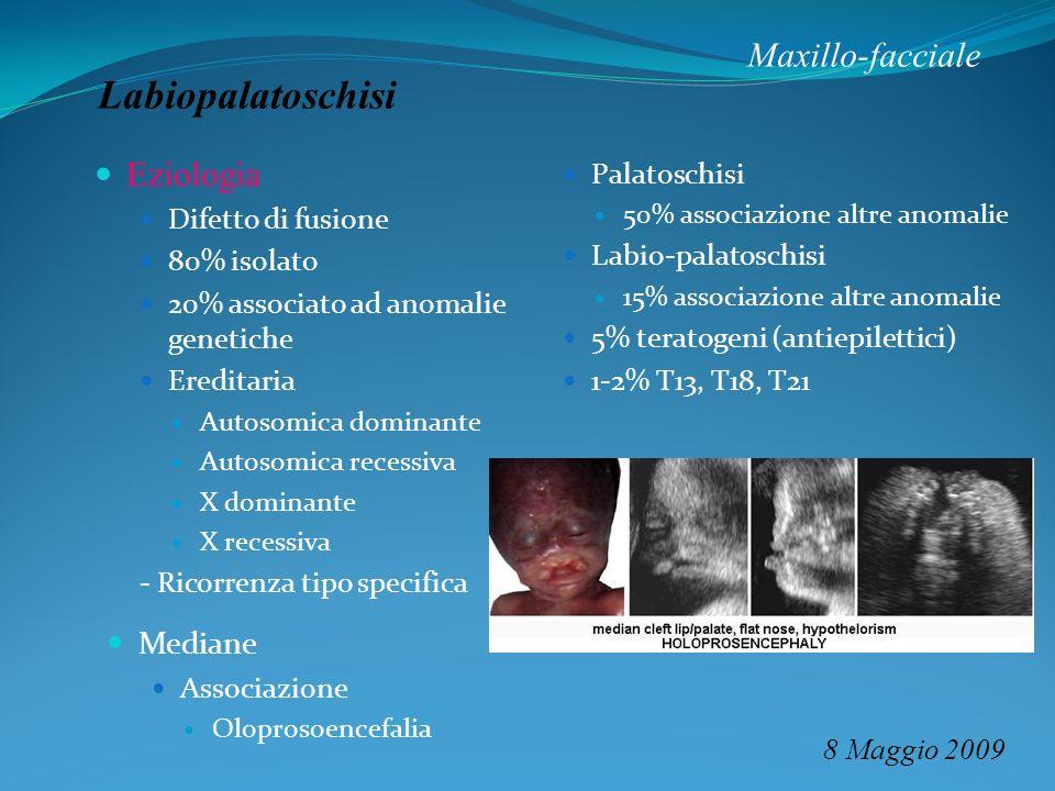 Maxillo-facciale 8 Maggio 2009 Labiopalatoschisi Palatoschisi 50% associazione altre anomalie Labio-palatoschisi 15% associazione altre anomalie 5% te