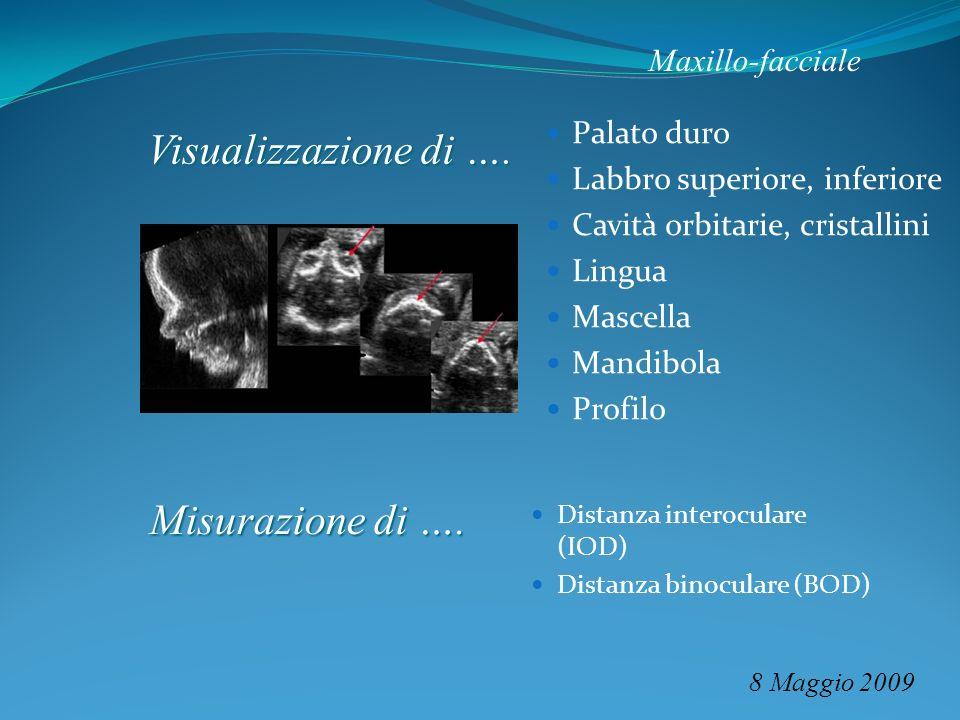 Maxillo-facciale 8 Maggio 2009 Palato duro Labbro superiore, inferiore Cavità orbitarie, cristallini Lingua Mascella Mandibola Profilo Visualizzazione