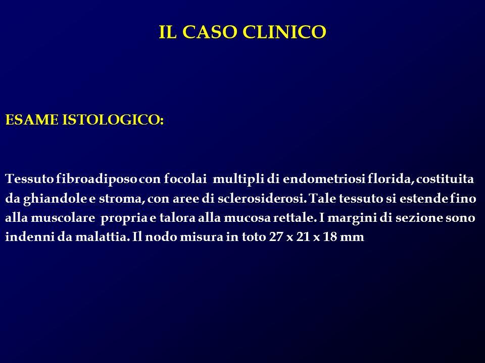 IL CASO CLINICO ESAME ISTOLOGICO: Tessuto fibroadiposo con focolai multipli di endometriosi florida, costituita da ghiandole e stroma, con aree di scl