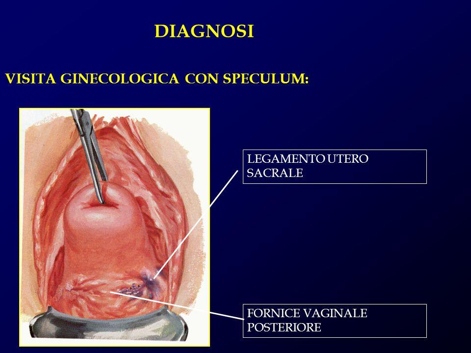 DIAGNOSI VISITA GINECOLOGICA CON SPECULUM: LEGAMENTO UTERO SACRALE FORNICE VAGINALE POSTERIORE