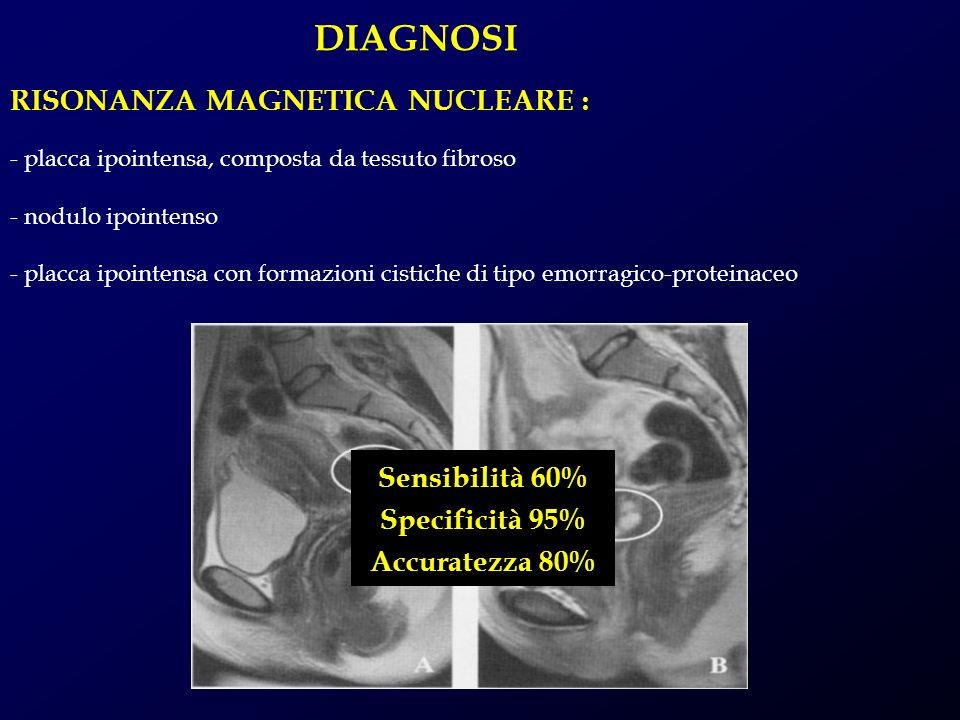 DIAGNOSI - placca ipointensa, composta da tessuto fibroso - nodulo ipointenso - placca ipointensa con formazioni cistiche di tipo emorragico-proteinac