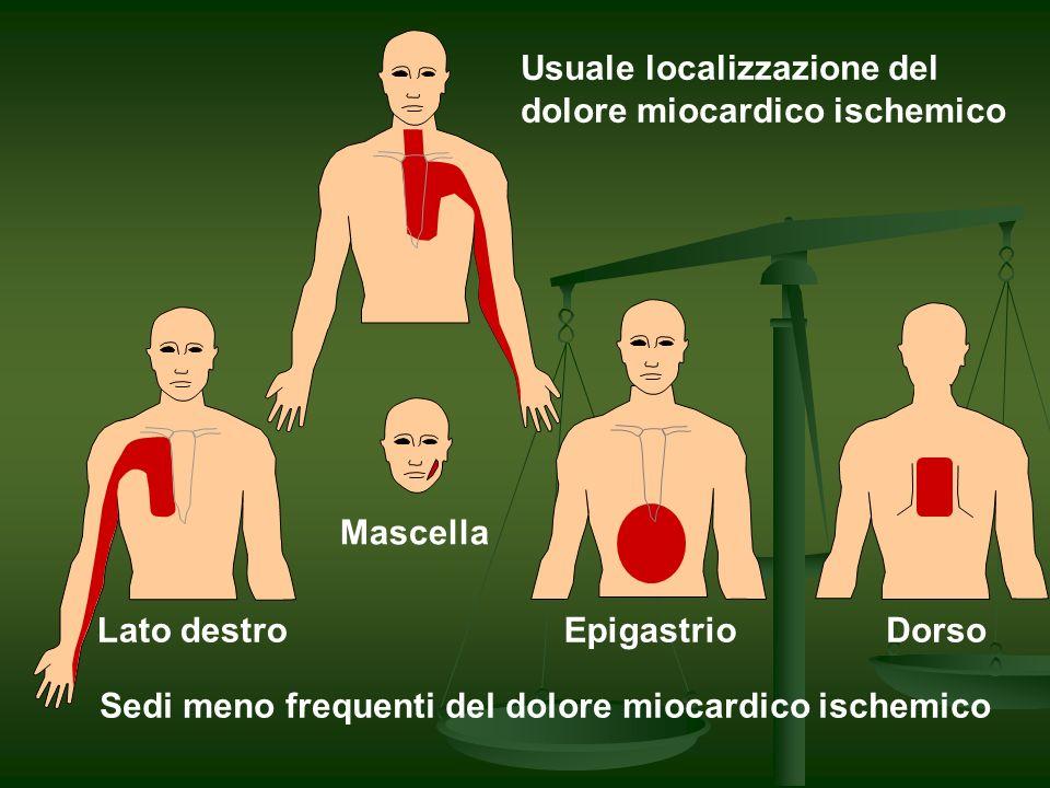 FISIOPATOLOGIA ISCHEMIA MIOCARDICA LESIONE ATEROSCLEROTICA FISSA LESIONE ATEROSCLEROTICA FISSA ROTTURA O EROSIONE DI PLACCA ROTTURA O EROSIONE DI PLACCA AGGREGAZIONE PIASTRINICA AGGREGAZIONE PIASTRINICA TROMBOSI TROMBOSI INFIAMMAZIONE INFIAMMAZIONE VASOCOSTRIZIONE VASOCOSTRIZIONE MICROEMBOLIZZAZIONE DISTALE MICROEMBOLIZZAZIONE DISTALE