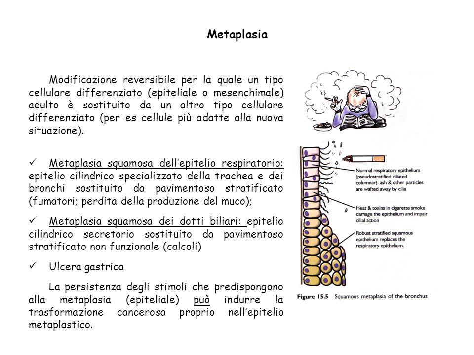 Metaplasia Modificazione reversibile per la quale un tipo cellulare differenziato (epiteliale o mesenchimale) adulto è sostituito da un altro tipo cel