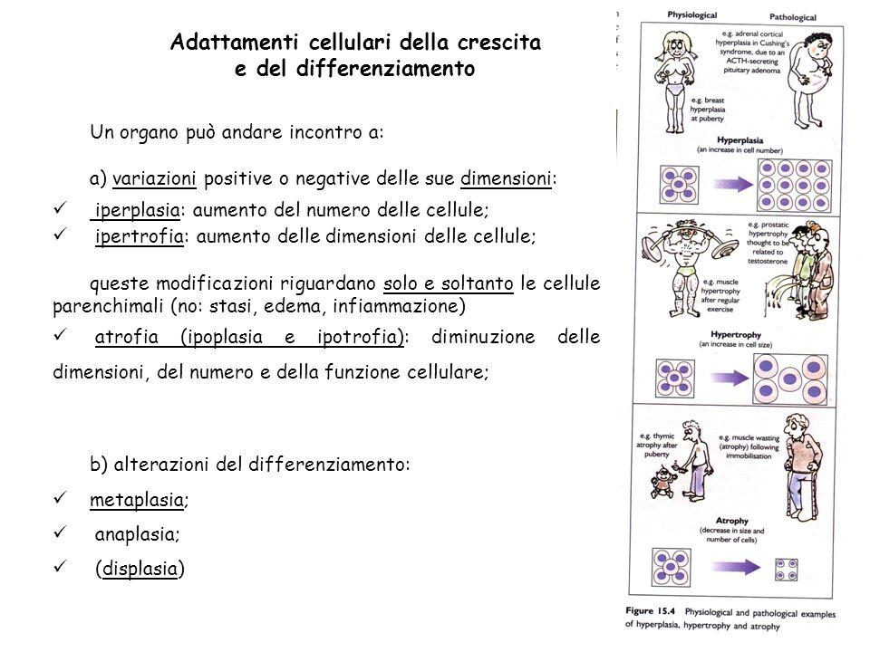 Adattamenti cellulari della crescita e del differenziamento Un organo può andare incontro a: a) variazioni positive o negative delle sue dimensioni: i