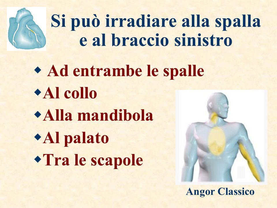 Si può irradiare alla spalla e al braccio sinistro Ad entrambe le spalle Al collo Alla mandibola Al palato Tra le scapole Angor Classico