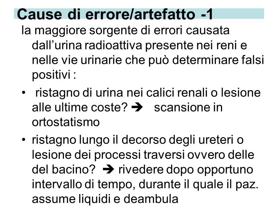 Cause di errore/artefatto -1 la maggiore sorgente di errori causata dallurina radioattiva presente nei reni e nelle vie urinarie che può determinare f