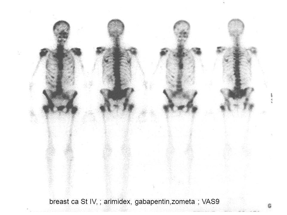 breast ca St IV, ; arimidex, gabapentin,zometa ; VAS9