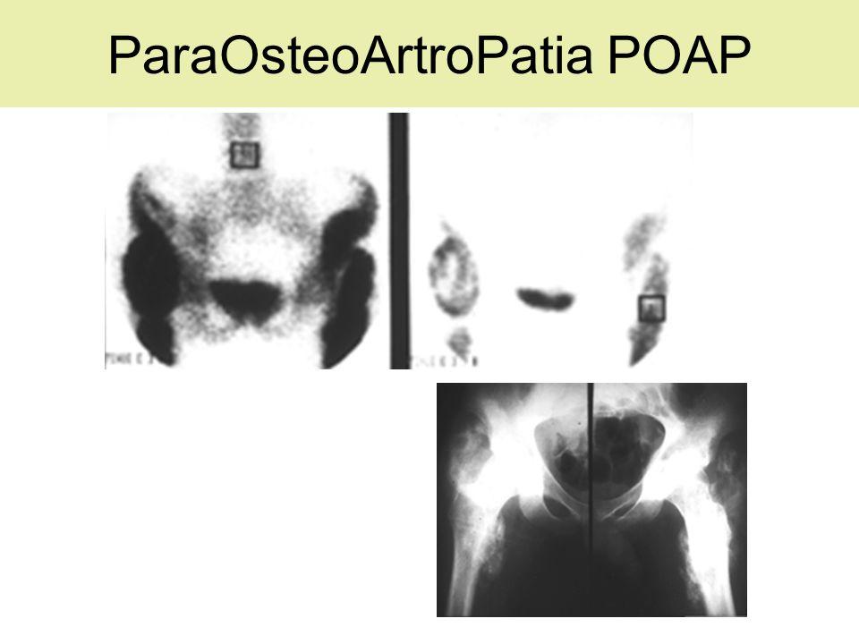 ParaOsteoArtroPatia POAP
