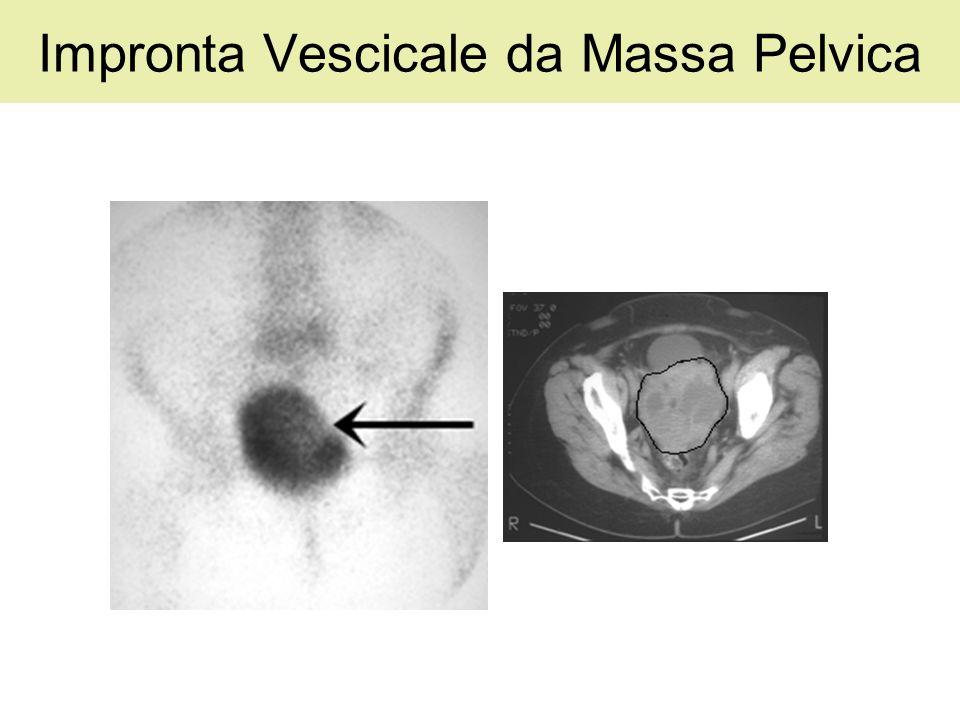 Impronta Vescicale da Massa Pelvica