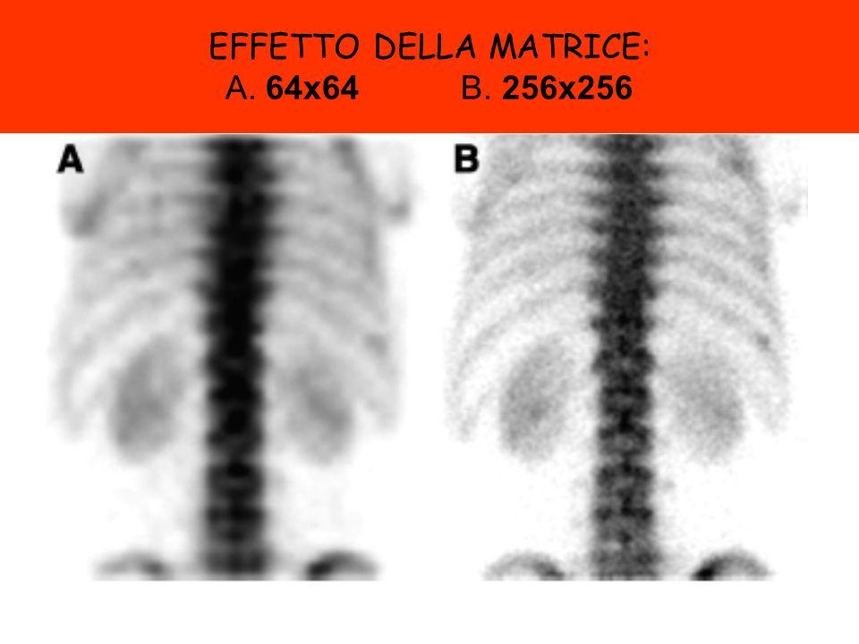 EFFETTO DELLA MATRICE: A. 64x64 B. 256x256