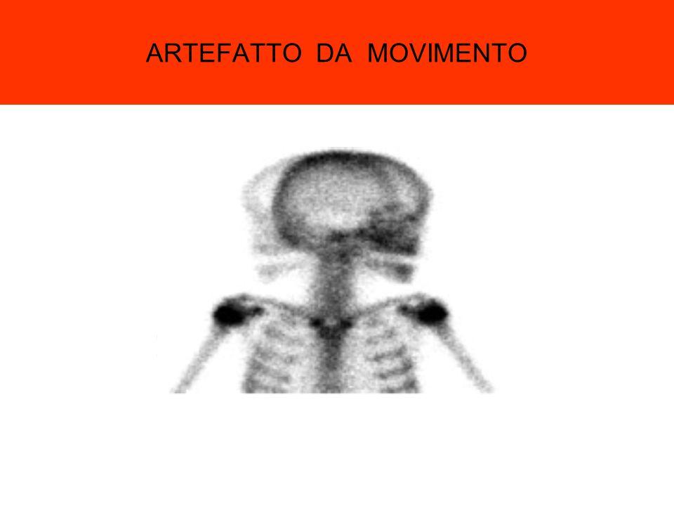 ARTEFATTO DA MOVIMENTO