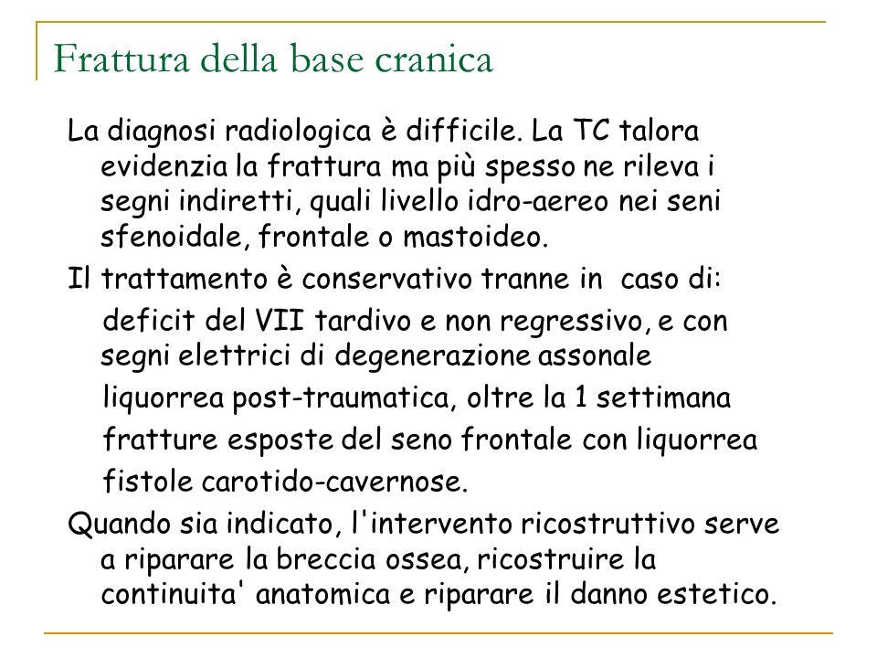 Frattura della base cranica La diagnosi radiologica è difficile. La TC talora evidenzia la frattura ma più spesso ne rileva i segni indiretti, quali l