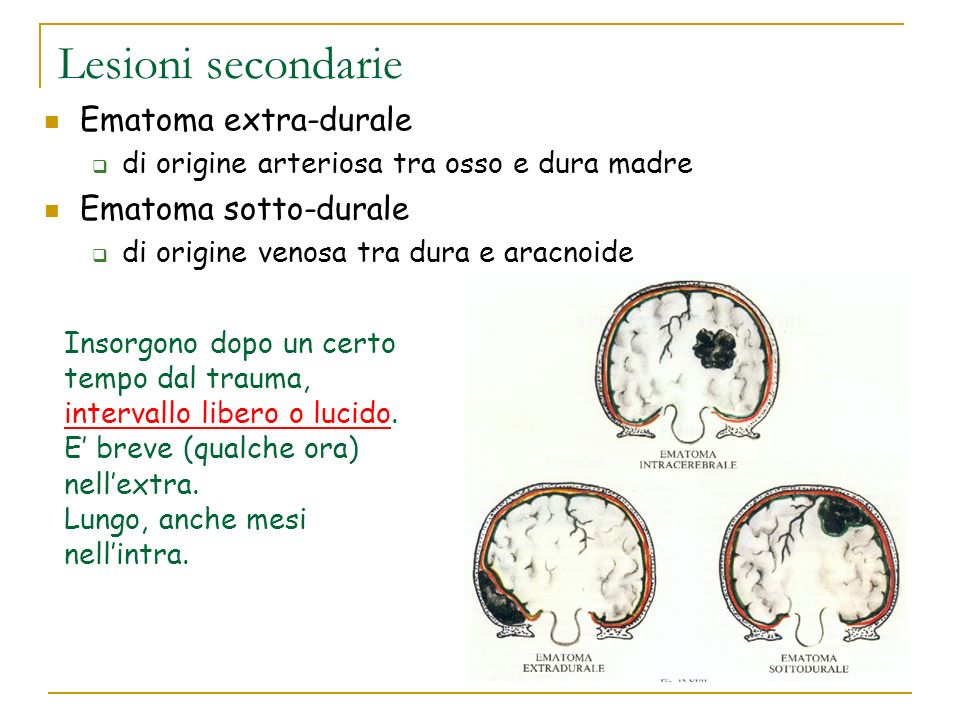 Lesioni secondarie Ematoma extra-durale di origine arteriosa tra osso e dura madre Ematoma sotto-durale di origine venosa tra dura e aracnoide Insorgo