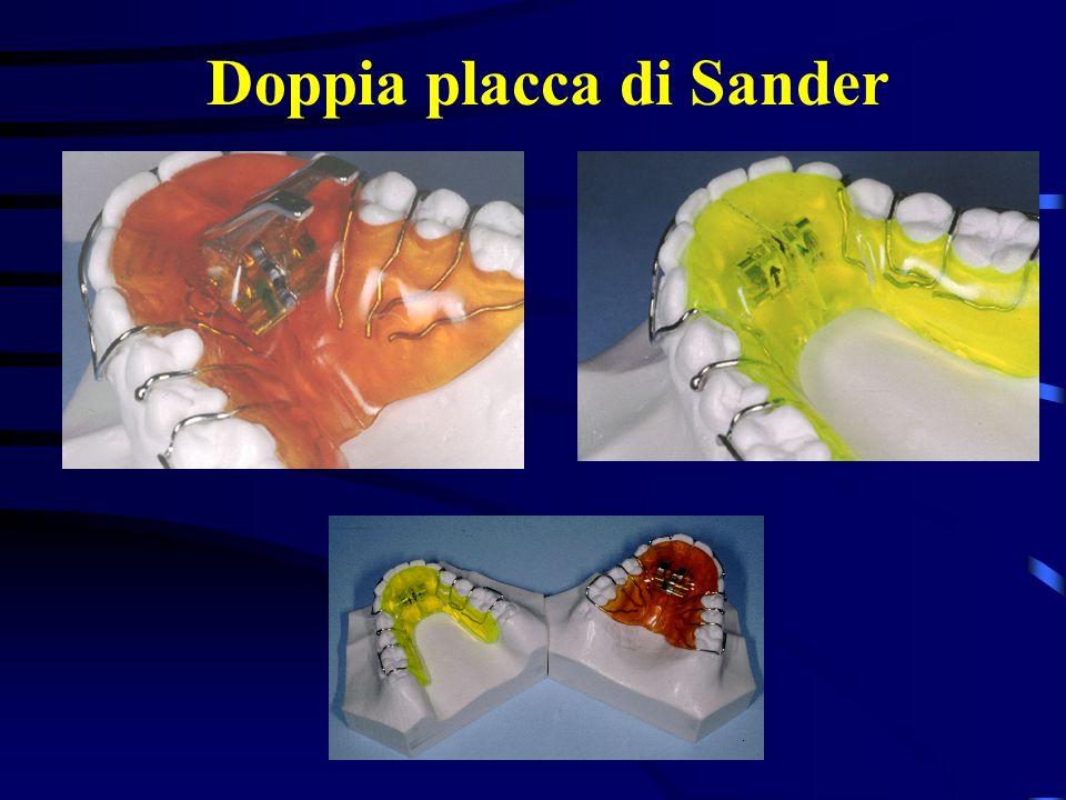 Tecnica di costruzione della Doppia placca di Sander
