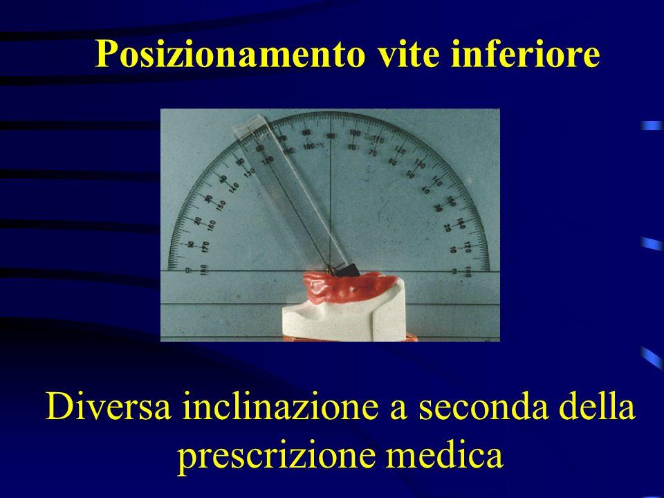 Diversa inclinazione a seconda della prescrizione medica Posizionamento vite inferiore