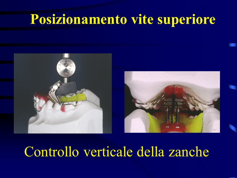Controllo verticale della zanche