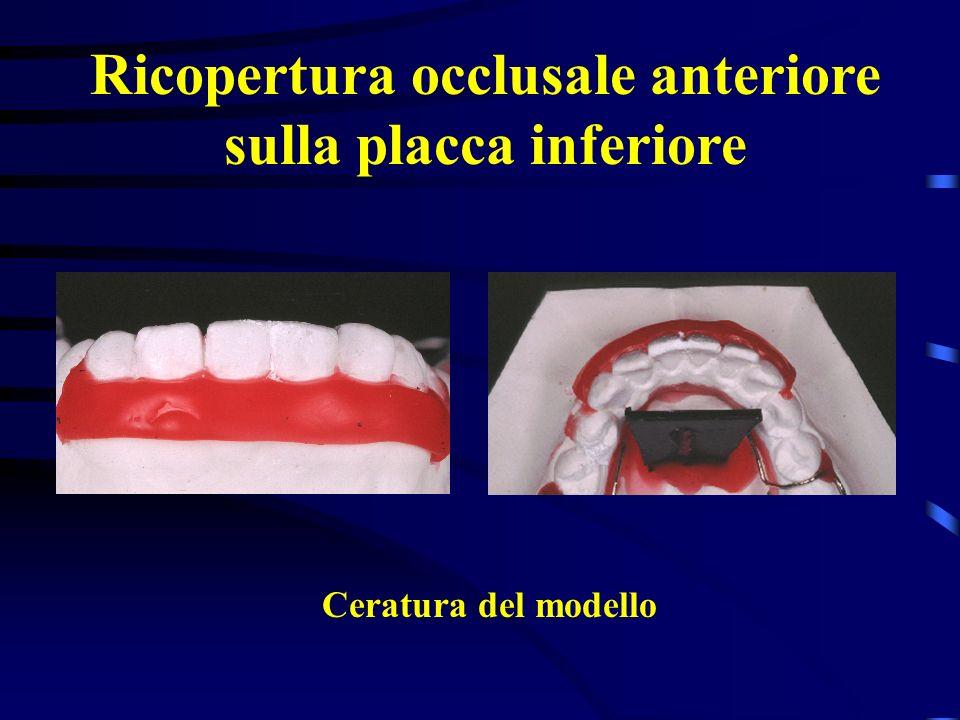 Ricopertura occlusale anteriore sulla placca inferiore Ceratura del modello