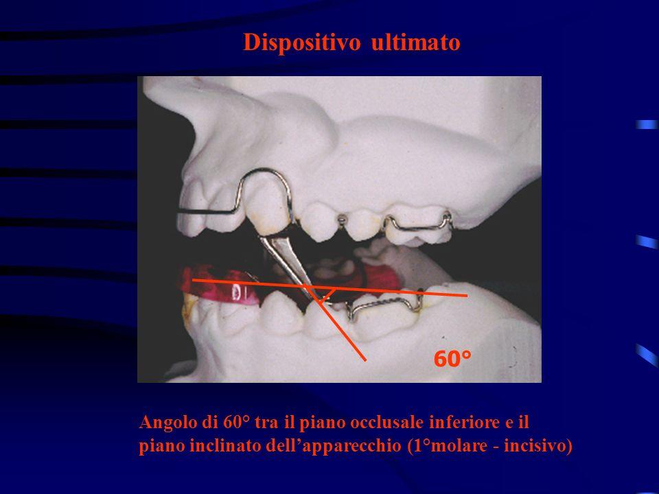 Dispositivo ultimato 60° Angolo di 60° tra il piano occlusale inferiore e il piano inclinato dellapparecchio (1°molare - incisivo)