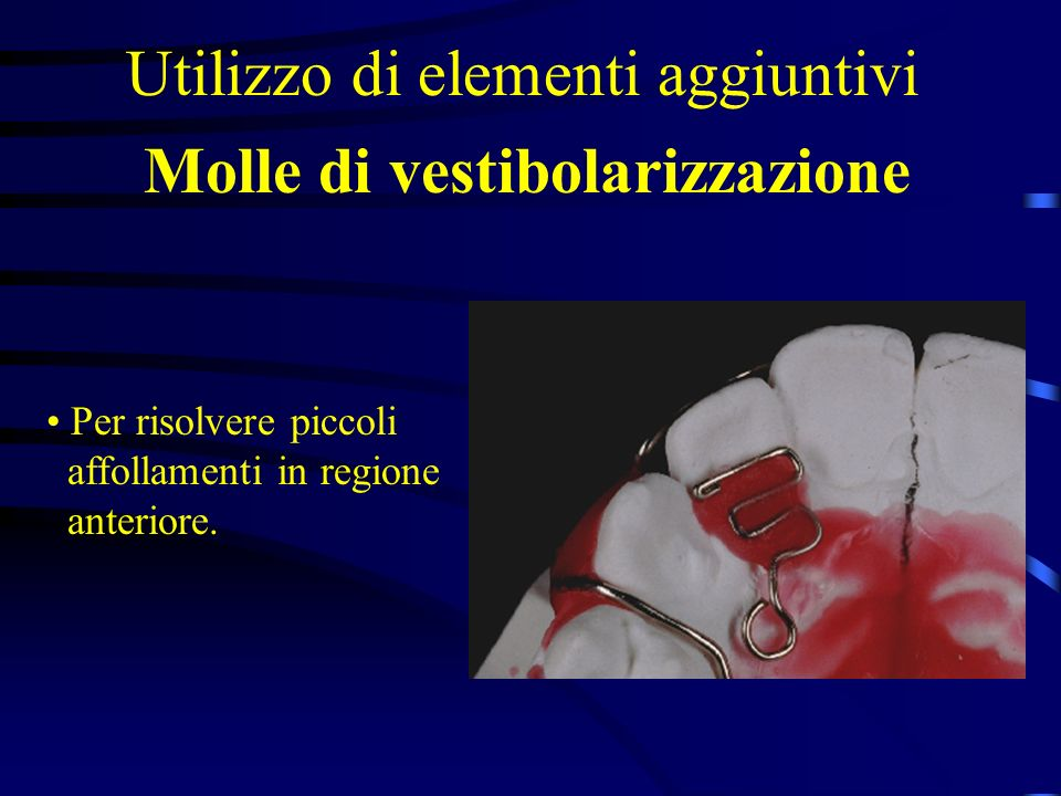 Molle di vestibolarizzazione Utilizzo di elementi aggiuntivi Per risolvere piccoli affollamenti in regione anteriore.