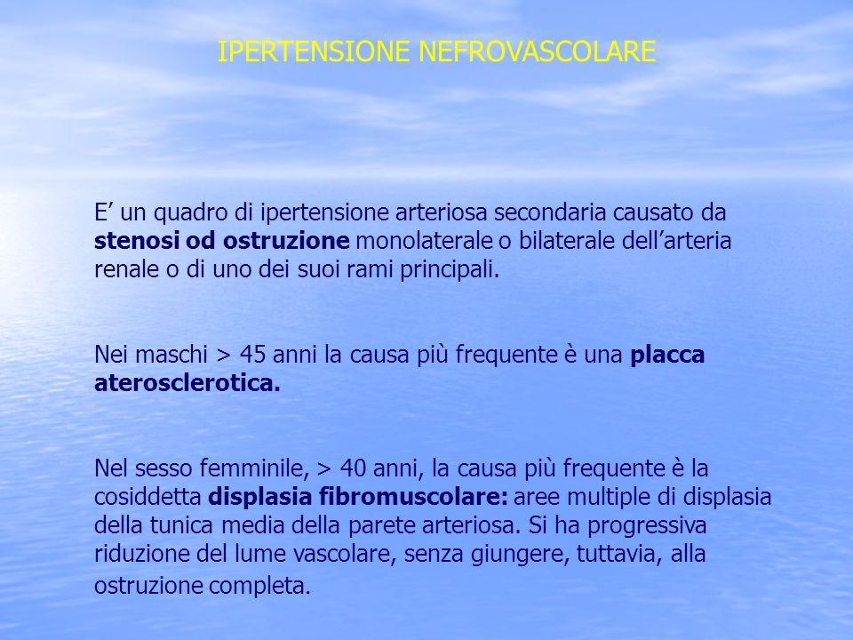 IPERTENSIONE NEFROVASCOLARE E un quadro di ipertensione arteriosa secondaria causato da stenosi od ostruzione monolaterale o bilaterale dellarteria re