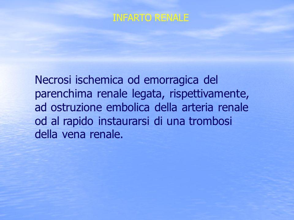 INFARTO RENALE Necrosi ischemica od emorragica del parenchima renale legata, rispettivamente, ad ostruzione embolica della arteria renale od al rapido