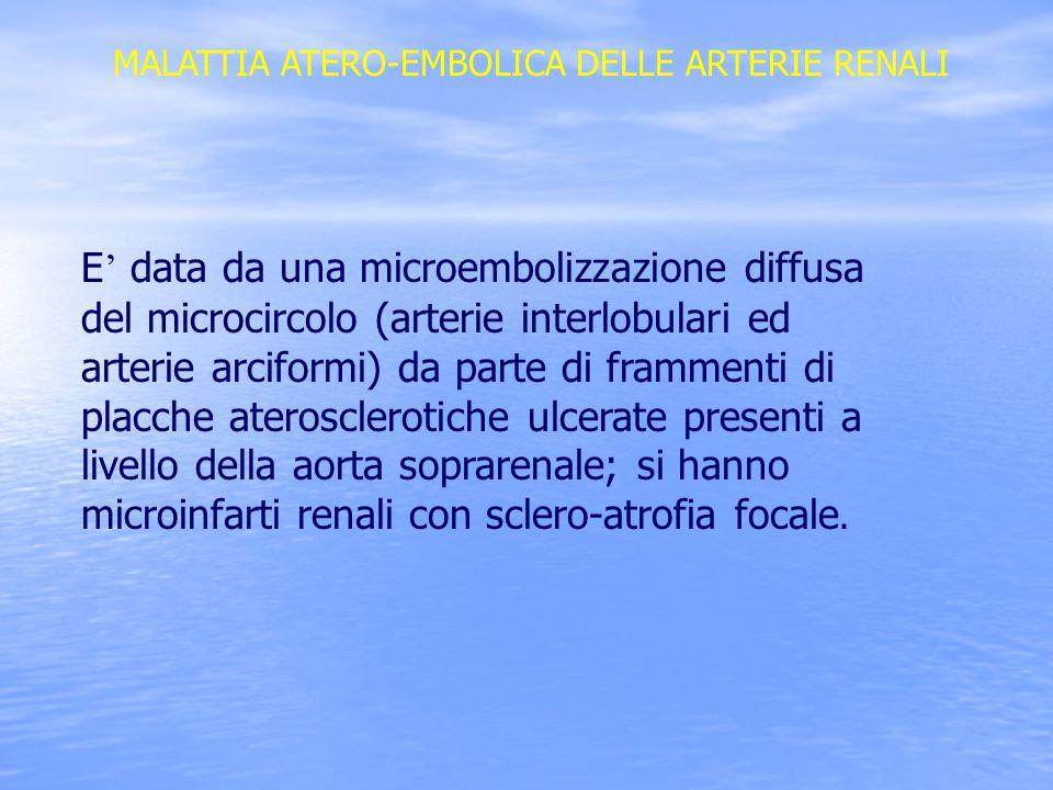 MALATTIA ATERO-EMBOLICA DELLE ARTERIE RENALI E data da una microembolizzazione diffusa del microcircolo (arterie interlobulari ed arterie arciformi) d