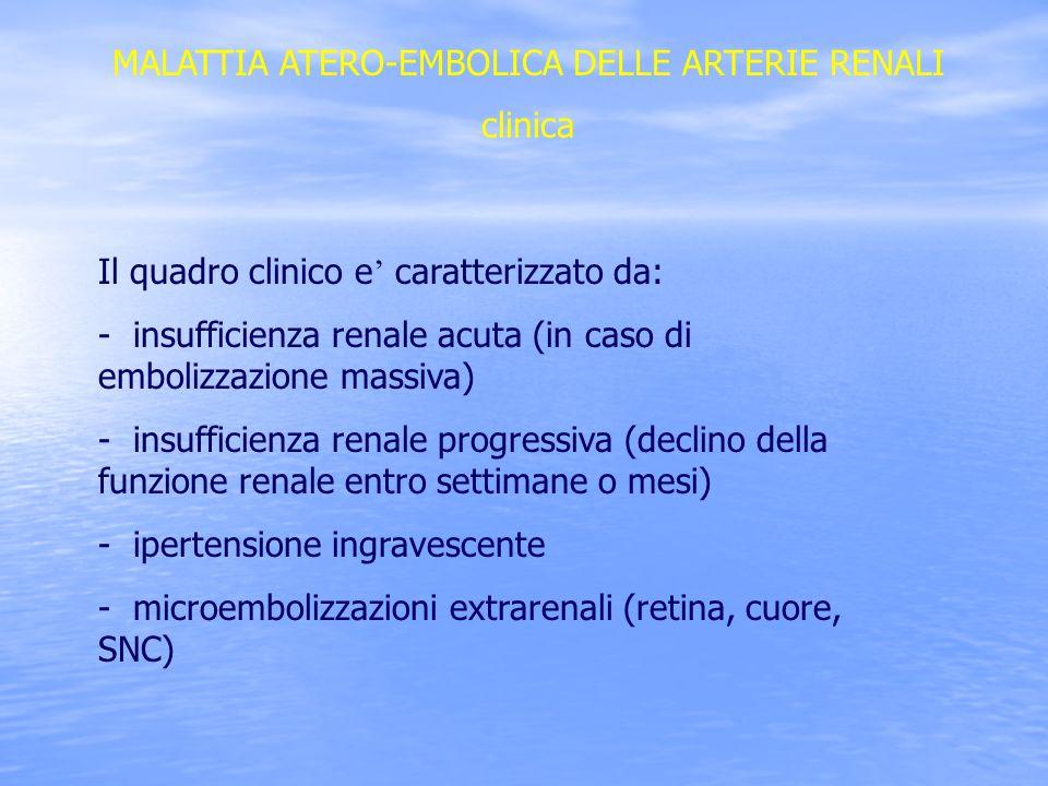 MALATTIA ATERO-EMBOLICA DELLE ARTERIE RENALI clinica Il quadro clinico e caratterizzato da: - insufficienza renale acuta (in caso di embolizzazione ma