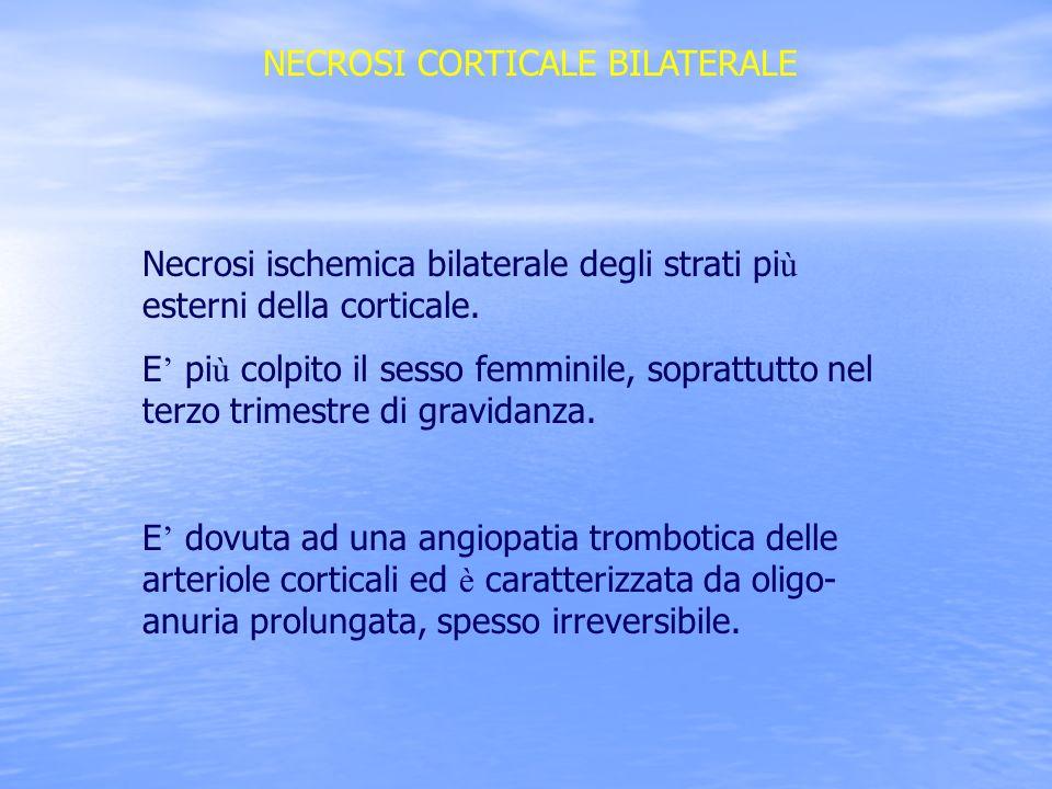 NECROSI CORTICALE BILATERALE Necrosi ischemica bilaterale degli strati pi ù esterni della corticale. E pi ù colpito il sesso femminile, soprattutto ne