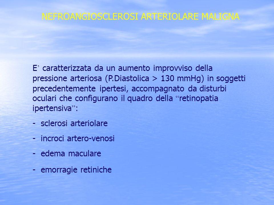 NEFROANGIOSCLEROSI ARTERIOLARE MALIGNA E caratterizzata da un aumento improvviso della pressione arteriosa (P.Diastolica > 130 mmHg) in soggetti prece