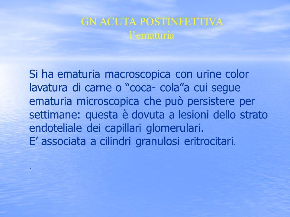 GN ACUTA POSTINFETTIVA lematuria Si ha ematuria macroscopica con urine color lavatura di carne o coca- colaa cui segue ematuria microscopica che può p