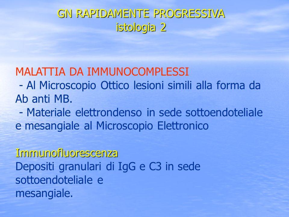 MALATTIA DA IMMUNOCOMPLESSI - Al Microscopio Ottico lesioni simili alla forma da Ab anti MB. - Materiale elettrondenso in sede sottoendoteliale e mesa