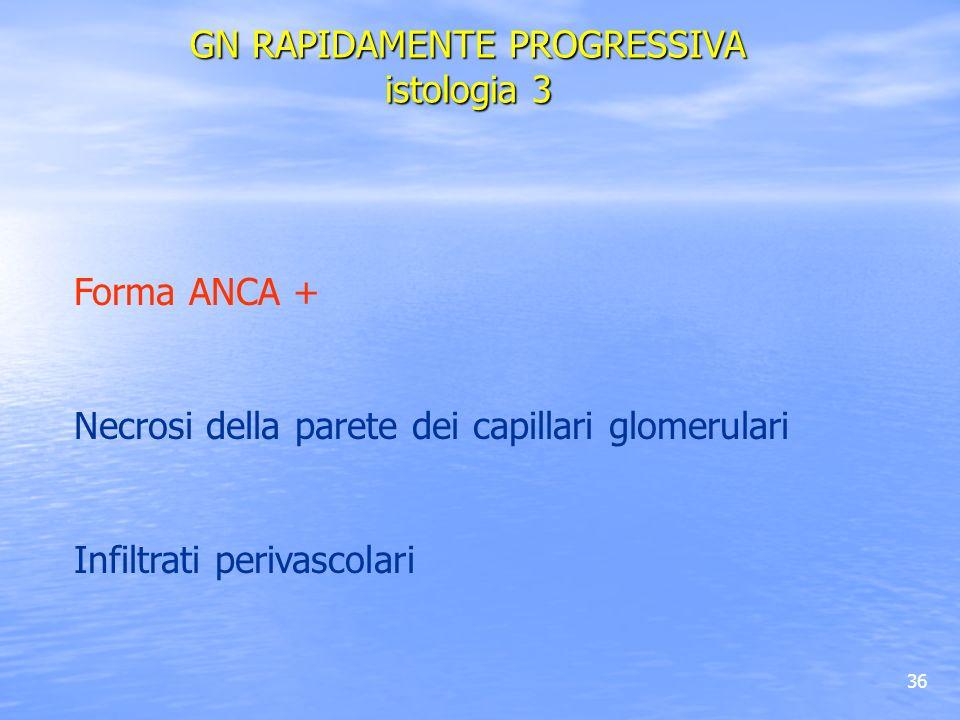 36 Forma ANCA + Necrosi della parete dei capillari glomerulari Infiltrati perivascolari GN RAPIDAMENTE PROGRESSIVA istologia 3